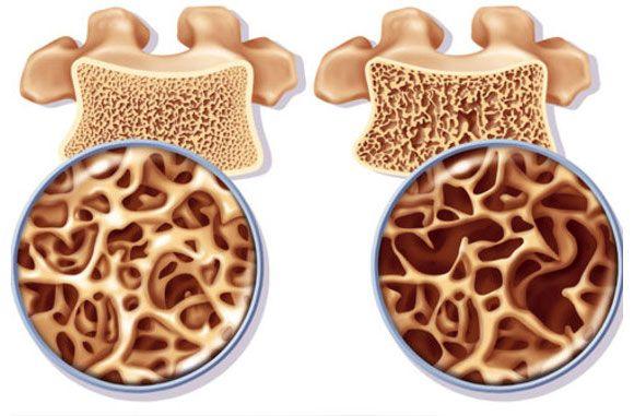 csontritkulás kezelés ízületi gyulladás kezelése