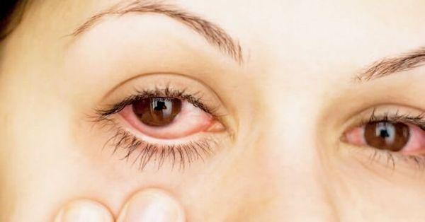 infección en los ojos picazón