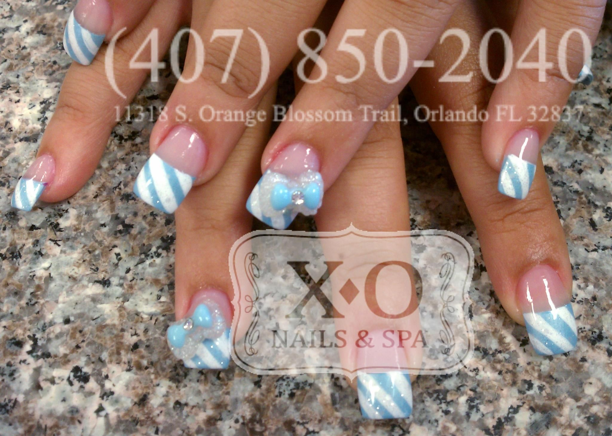 Candy Stripes Nail Design With 3d Bows Simple Nail Art Httpswww