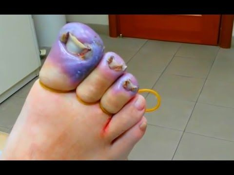 INGROWN TOENAIL SURGERY (toenail removal) \