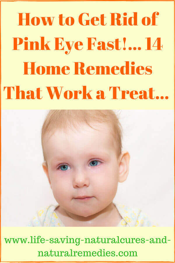 7edc34becbd81ab93aadba0c2c6ff384 - How To Get Rid Of Pink Eye In Infants