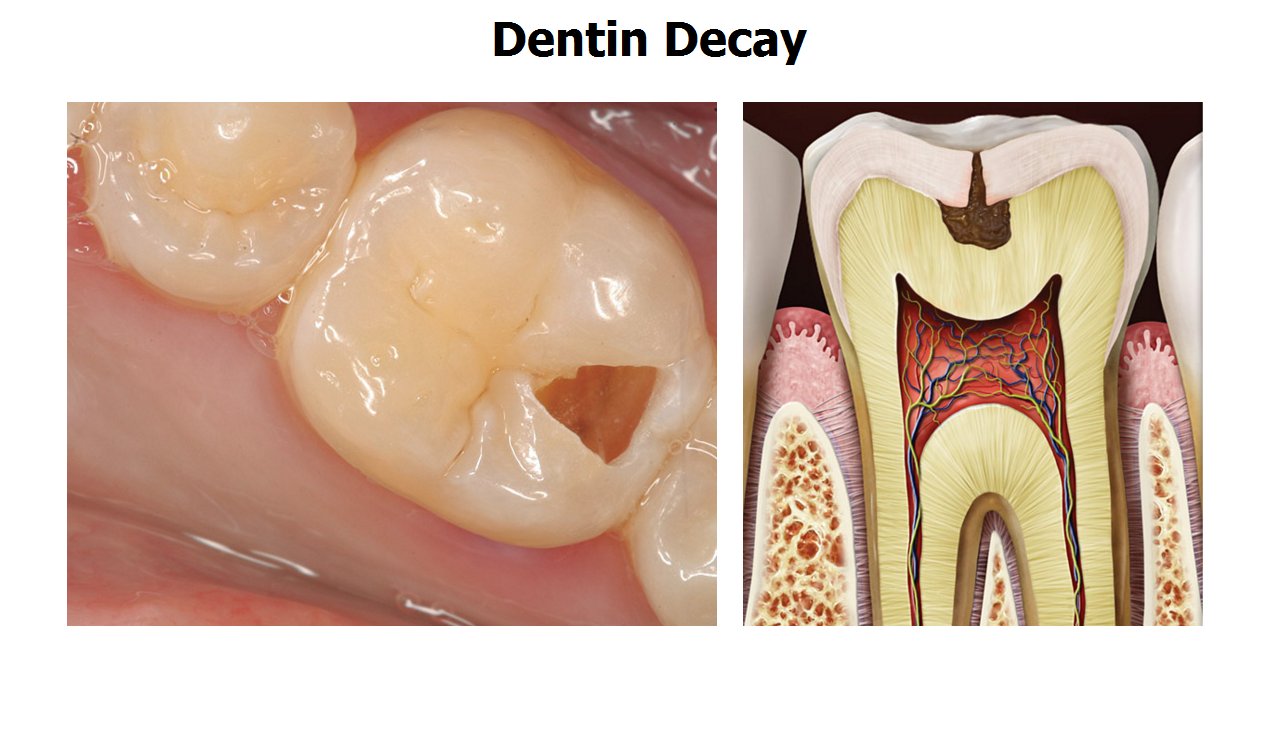 5 Stages Of Tooth Decay
