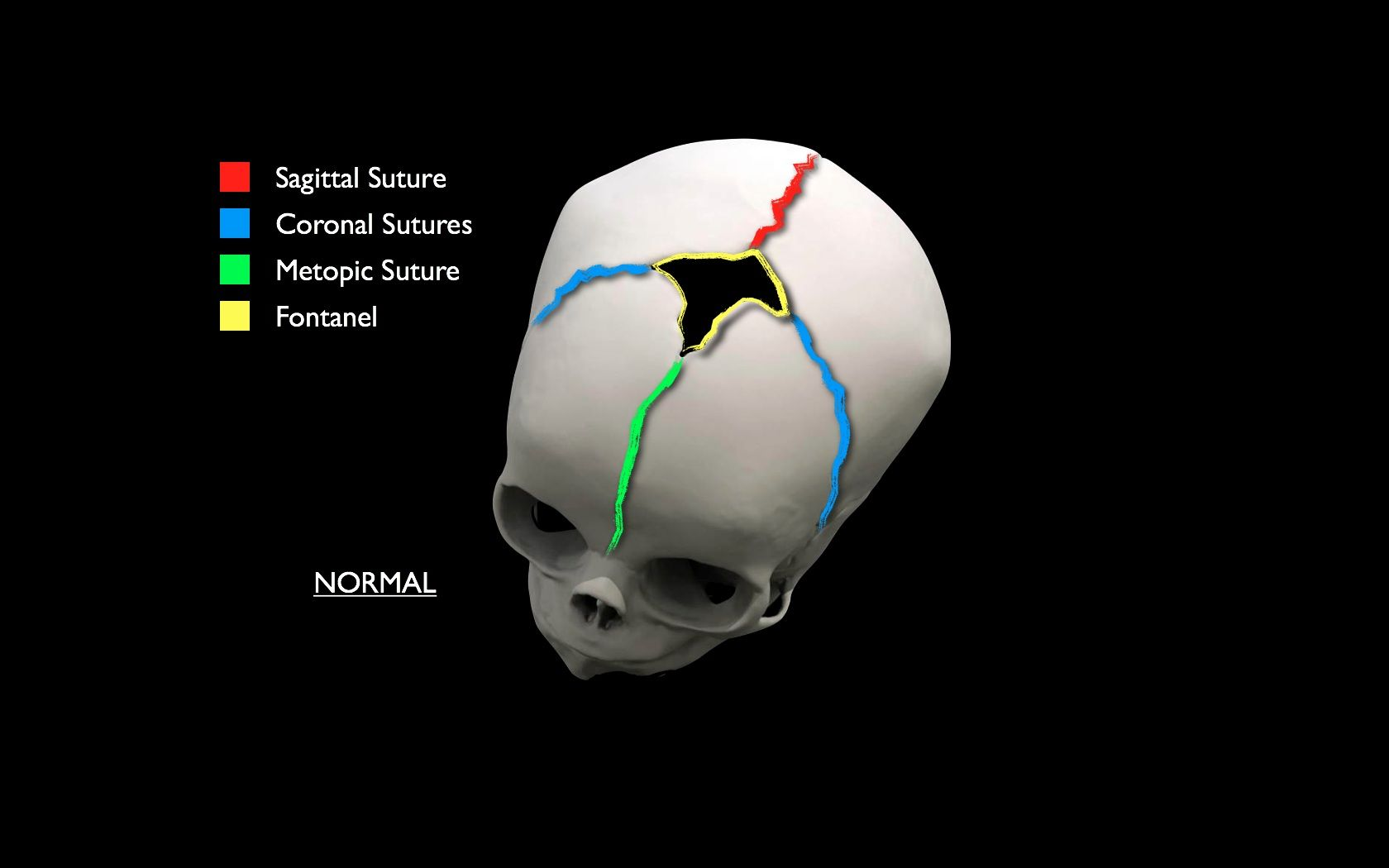 sagittal suture fusion - HD 1680×1050