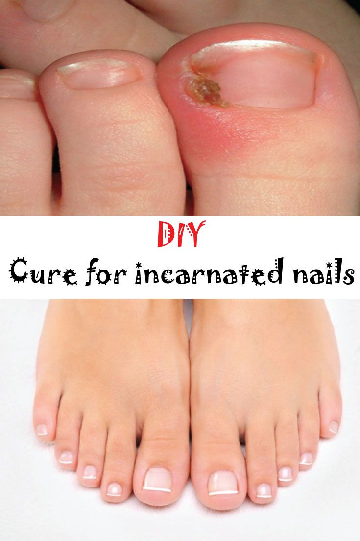 Do you know a cure for incarnated nails? – Secrets for Ladies | Home ...