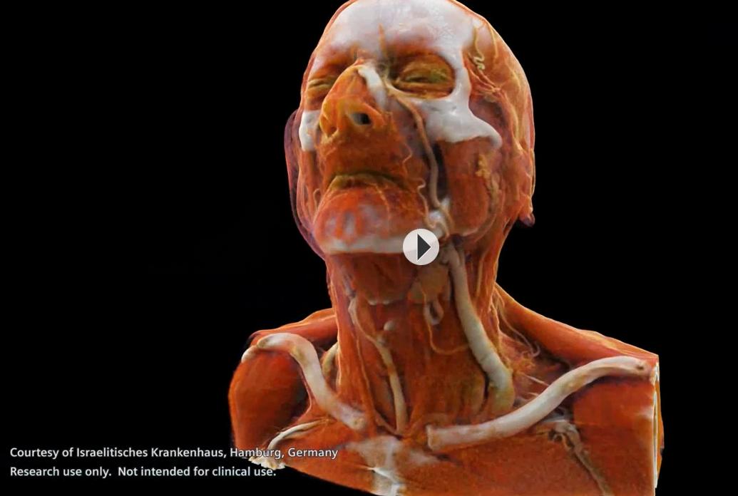 Efectos especiales en la sala de RX: El interior de un cuerpo humano ...