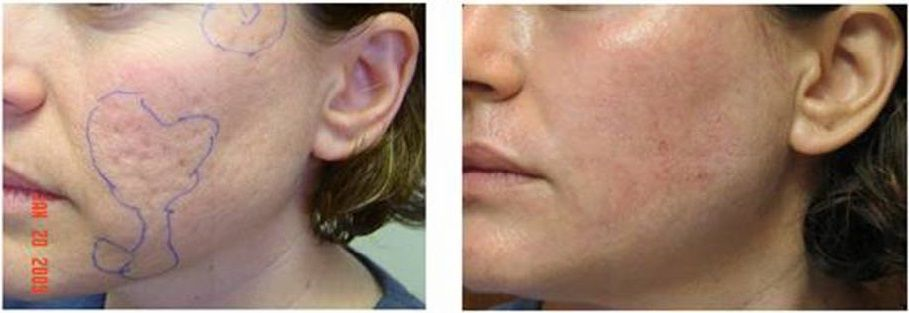 How To Cure Acne Scars Natural Way