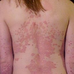 Psoriasis Revolution - Psoriasis Revolution - Best Drugs and Medications For Treating Psoriasis - Top Psoriasis Treatment | Search Home Remedy - REAL PEOPLE. REAL RESULTS 160,000  Psoriasis Free Customers REAL PEOPLE. REAL RESULTS 160,000+ Psoriasis Free Customers