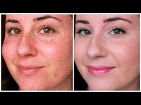 The Best Natural Remedies For Rosacea Rosacea Skin Care Natural