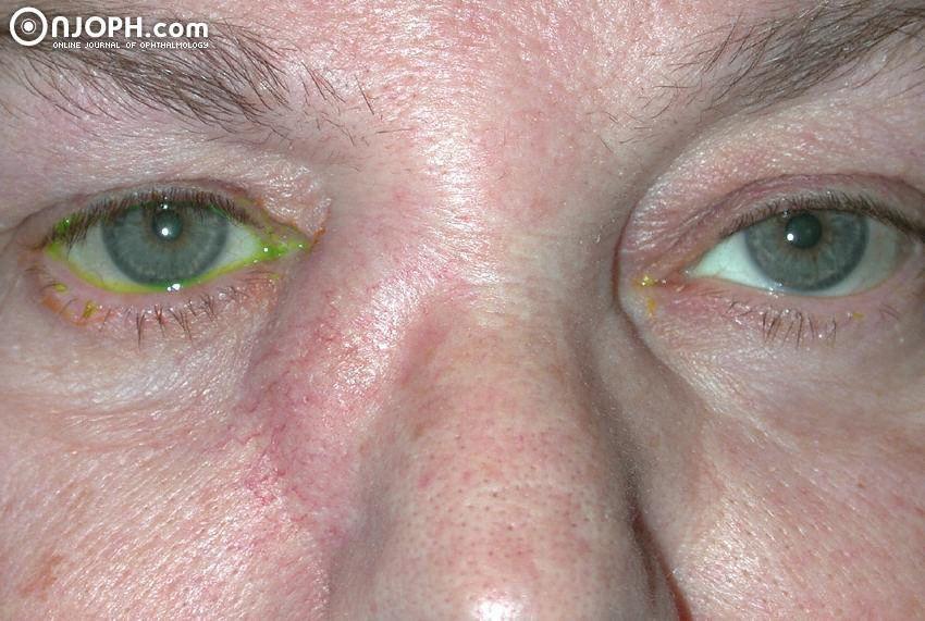 infezione oculare gonococcica