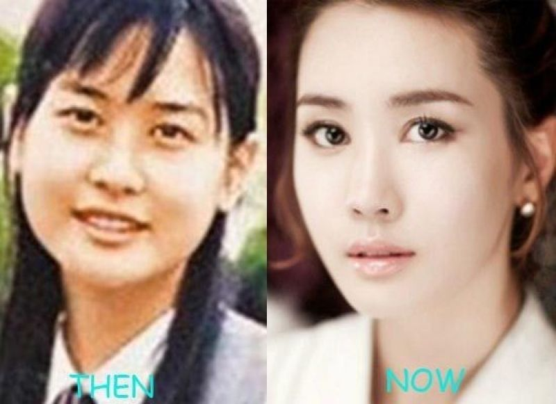 Korean Actors And Actresses Before And After Plastic Surgery Korean Actorsactresses Before And After Plastic Surgery K Drama Korean Actors And Actresses Before