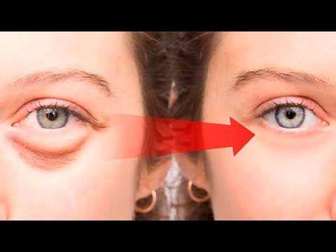 7ef90454c17dd51714f7ca7466cef36d - How To Get Rid Of Puffy Eyes From No Sleep