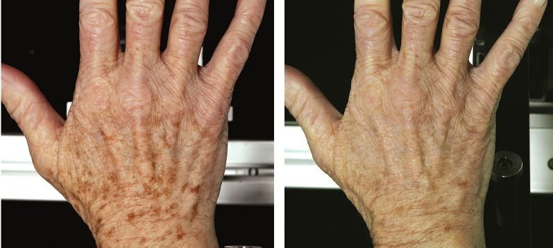 Fraxel Laser Philadelphia Laser Resurfacing Acne Scar Mask Skin Rejuvenation