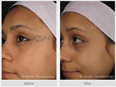 Laser tattoo removal before and after photo on the face for Laser tattoo removal madison wi
