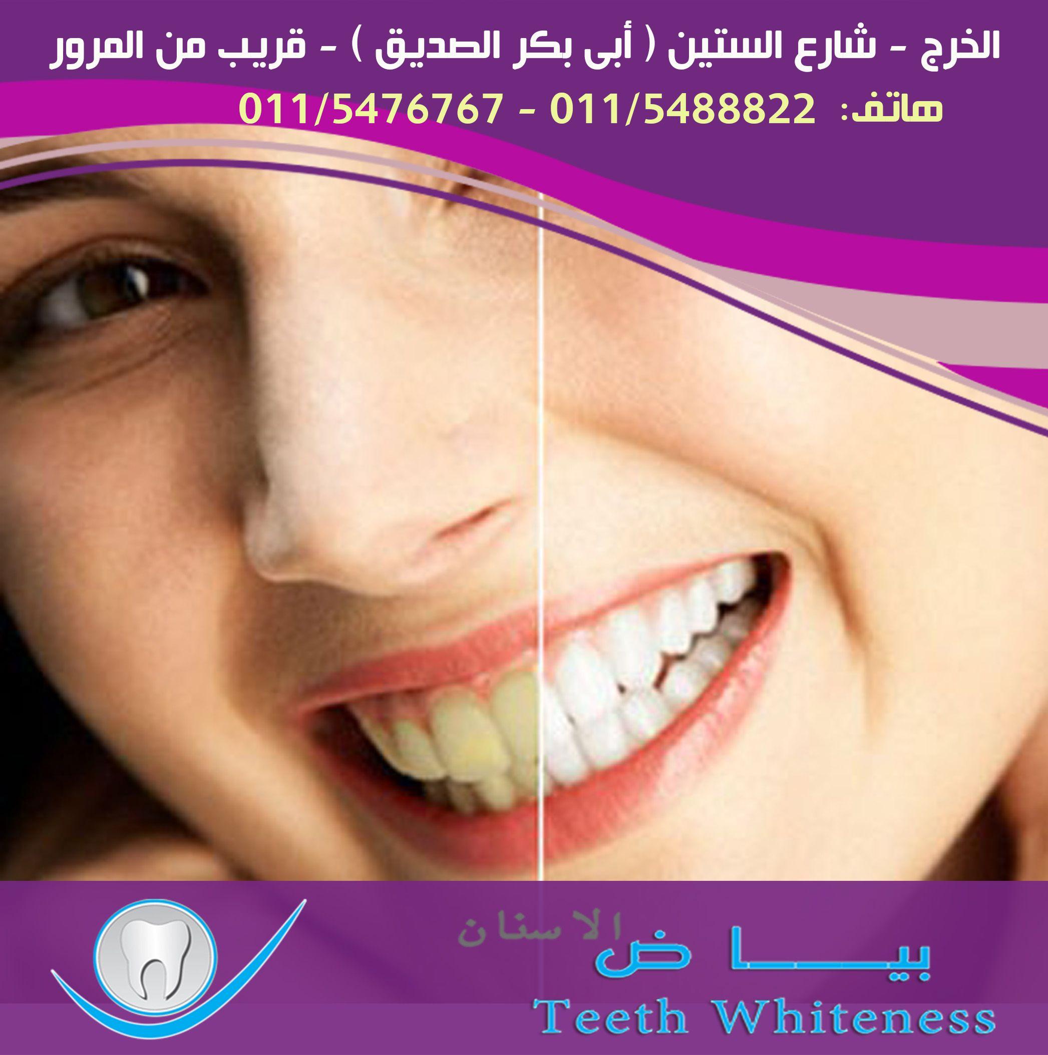 تسوس الاسنان يكشف الجذور التسوس يكشف عن جذور الاسنان ويعرضها لتاثيرات سلسلة من العوامل المؤلمة مثل البرد الحرارة الحلويات وحتى الهواء لمنع تسوس Teeth Nils