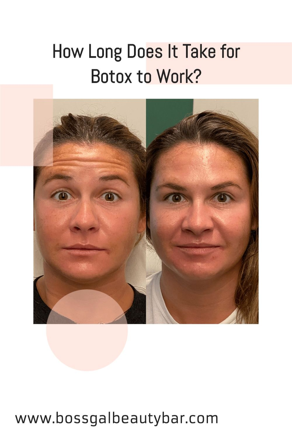 How Long Does It Take For Botox To Work Botox Botox Results Dermal Fillers