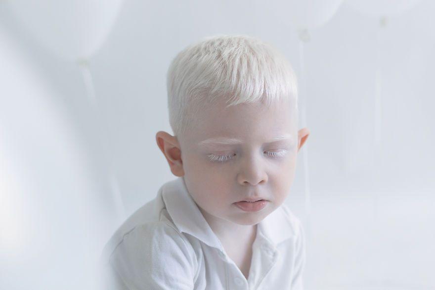 Fotografo captura a beleza hipnotizante de pessoas albinas