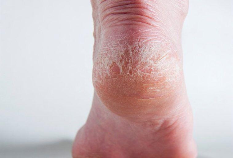beurre de karite pieds secs