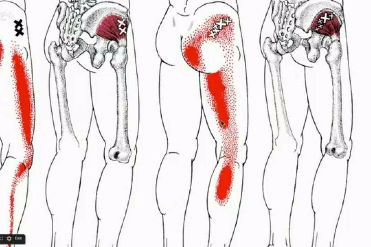 Ziemlich Ischiasnerv Bilder Zeitgenössisch - Menschliche Anatomie ...