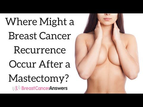 Recuring breast after mastectomy