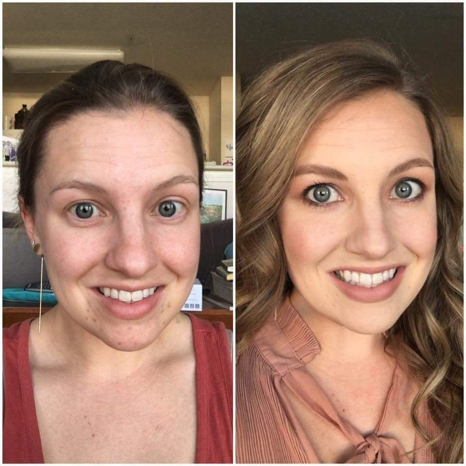 Pin by Martha A. Fiore on Maskcara Beauty Before & Afters