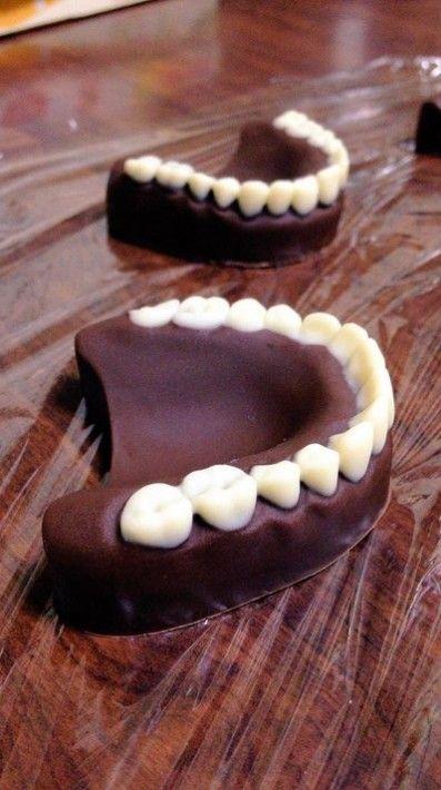 チョコ 入れ歯