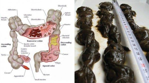 pierderea în greutate din colon cleanse)
