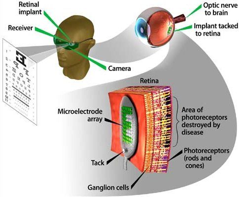 Diagram Of Artificial Eye 1993 Honda Accord Headlight Wiring The Argus Ii Is Manufactured By Second Sight Medical Products Inc It S Designed To Take Place Damaged Photoreceptors