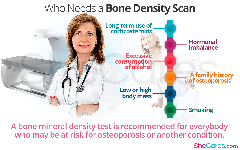 32+ How do you diagnose osteoporosis ideas in 2021