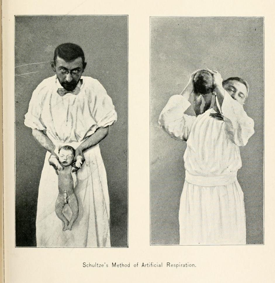 Schultze's Method of Artificial Respiration for Babies: Hold baby by the arms & flip over the shoulder / A Text-Book on Practical Obstetrics comprising Pregnancy, Labor, & the Puerperal State, & Obstetric Surgery. Egbert H. Grandin & George W. Jarman, 1897.
