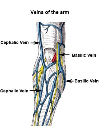 recombinant human elastase treatment of cephalic veins, Cephalic Vein