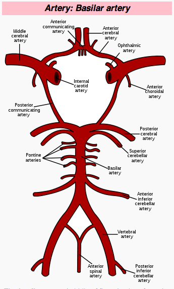 Narrow Blood Vessels in Brain | Solomon Heads Giant Aneurysms off at