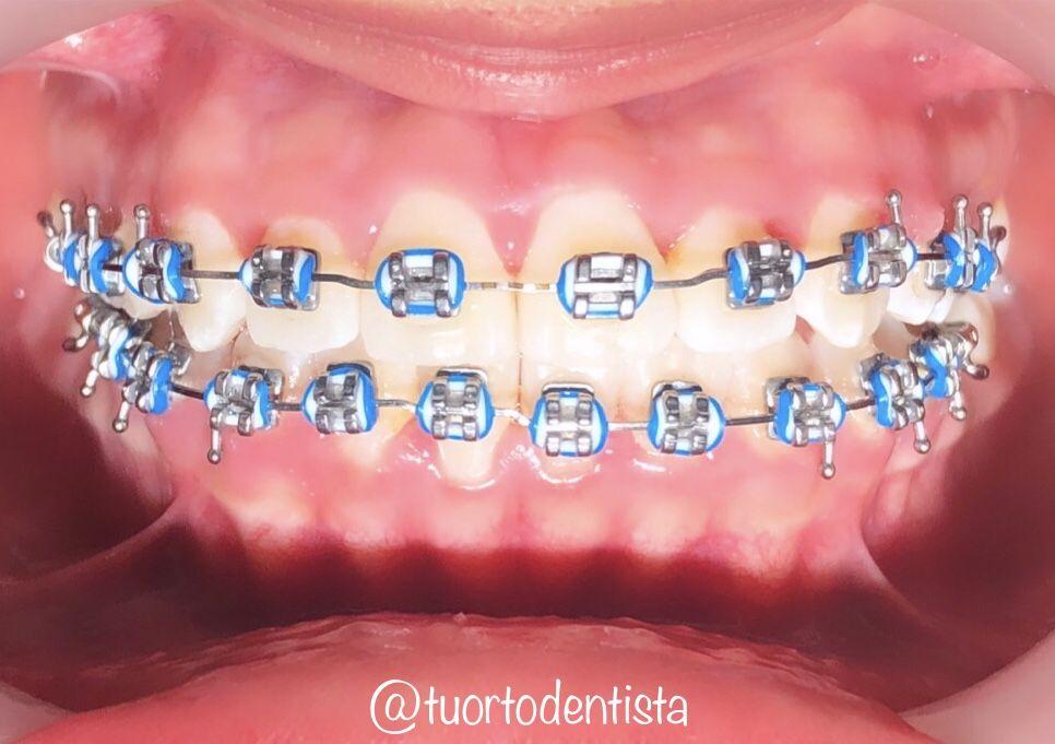 Ligas Bicolor Diamond Earrings Diamond Jewelry