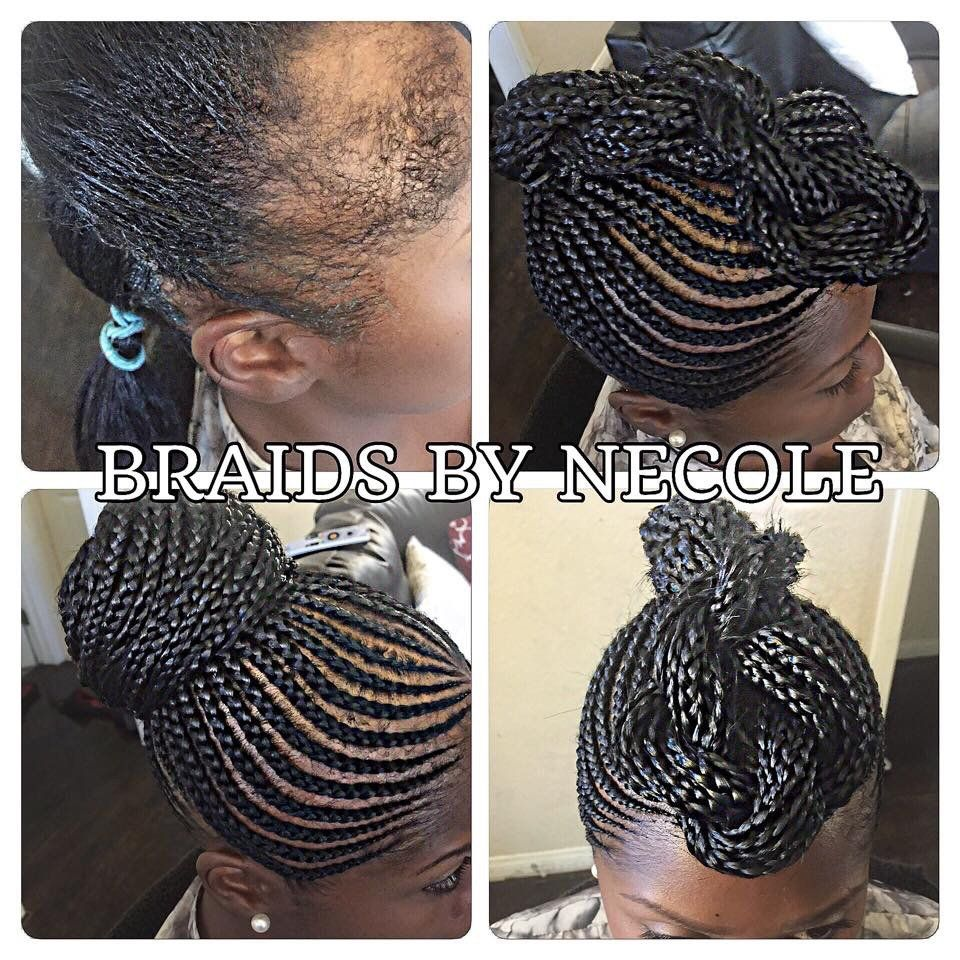 14 Extraordinary Alopecia Camouflage Cornrows By Braids By Necole Braids For Thin Hair Hair Styles Alopecia Hairstyles
