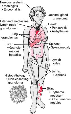 Sarcoidosis Apparently An Autoimmune Disorder That