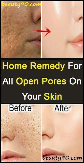 Performing a Quick Cleanse to Clean Pores and Get Rid of Clogged Pores – HEALTH AND BEAUTY - Healthy...