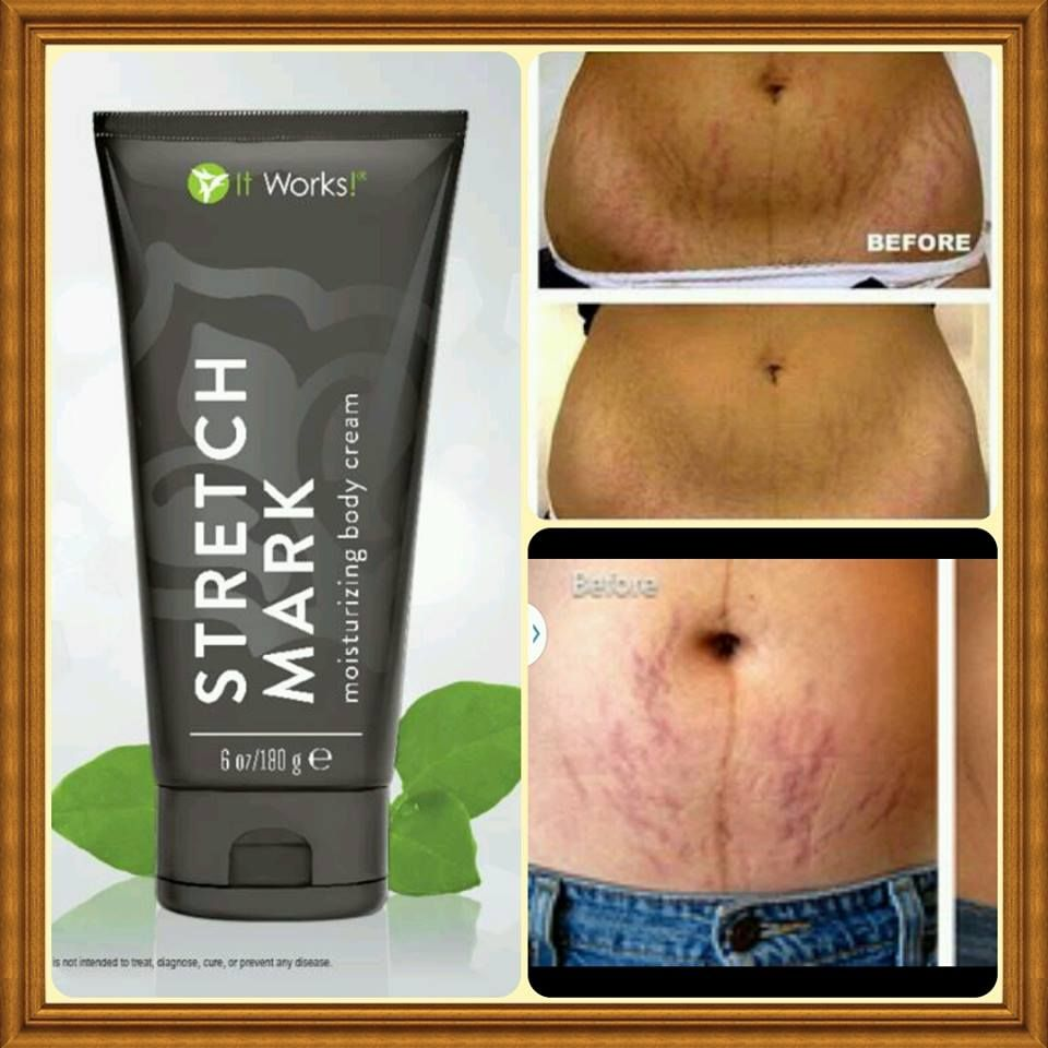 Try Out The Stretch Mark Cream At My Cost 39 For 3 Months All