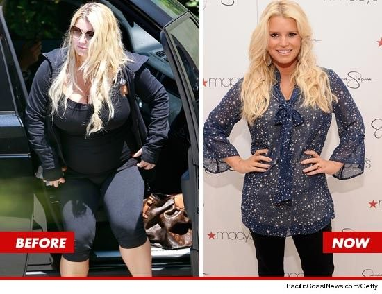 Jessica Simpson before and after liposuction