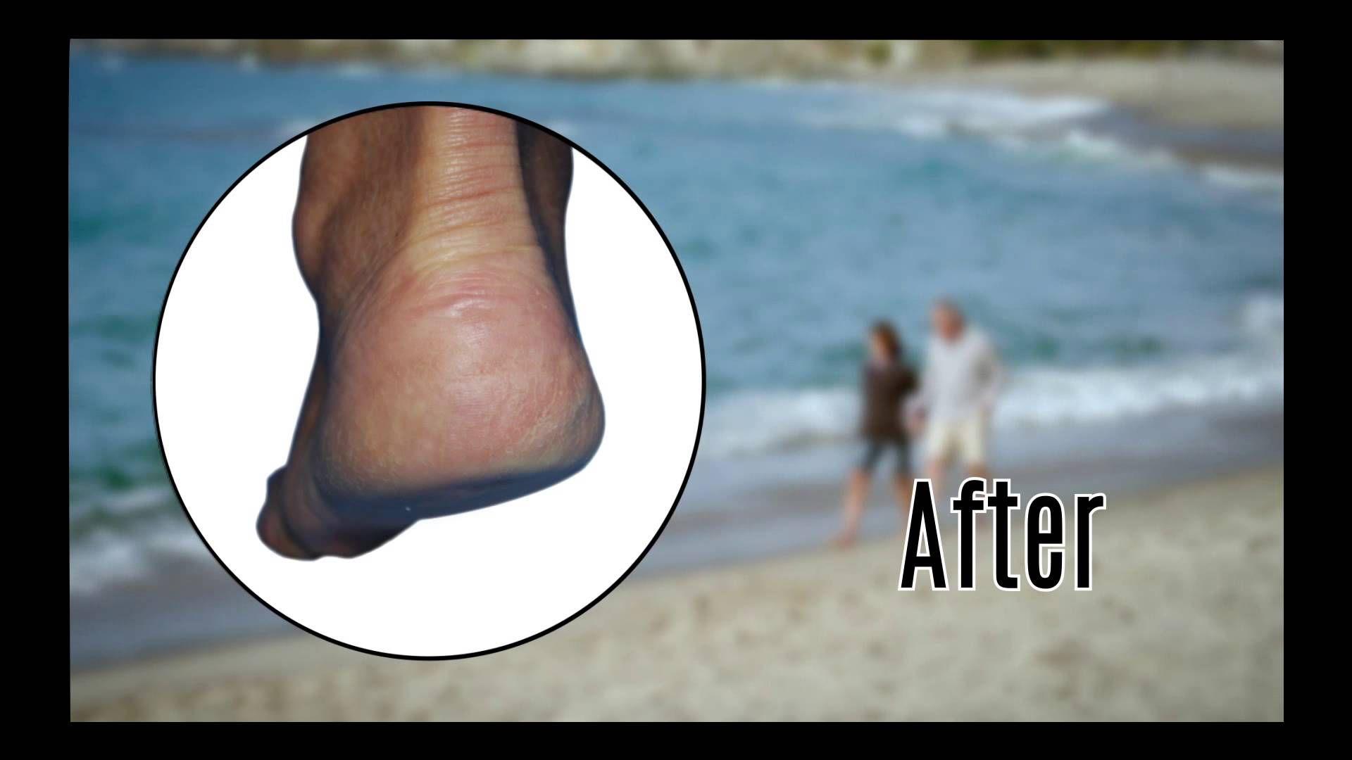Footmedix By Dermalmedix Footmedix By Dermalmedix Pinterest