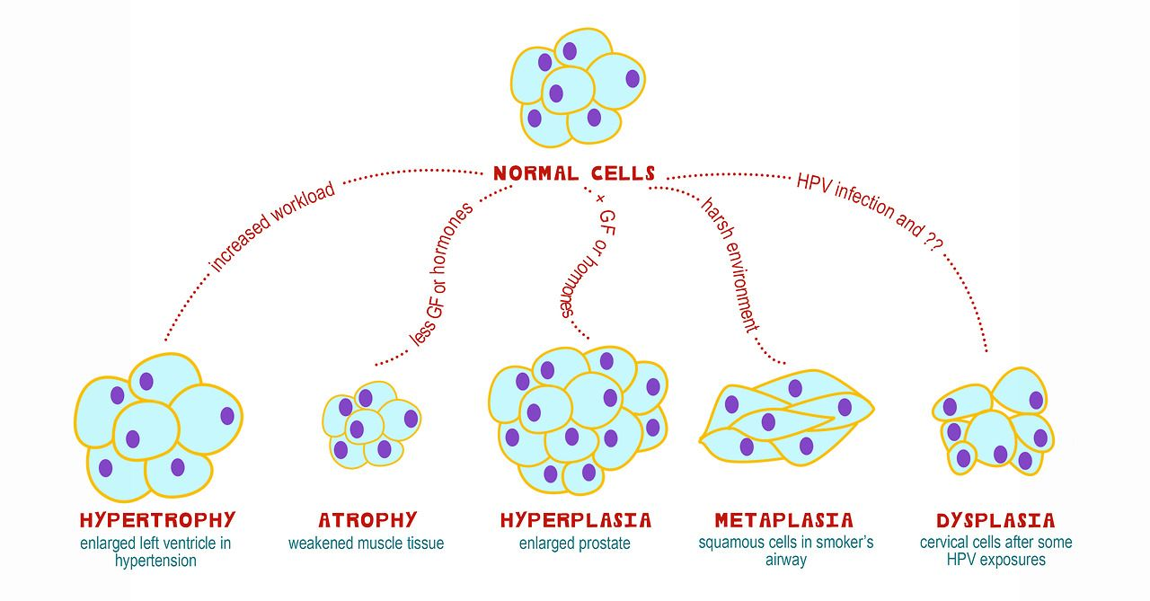 cellular adaptations study guide for physiology, nursing, anatomy ...