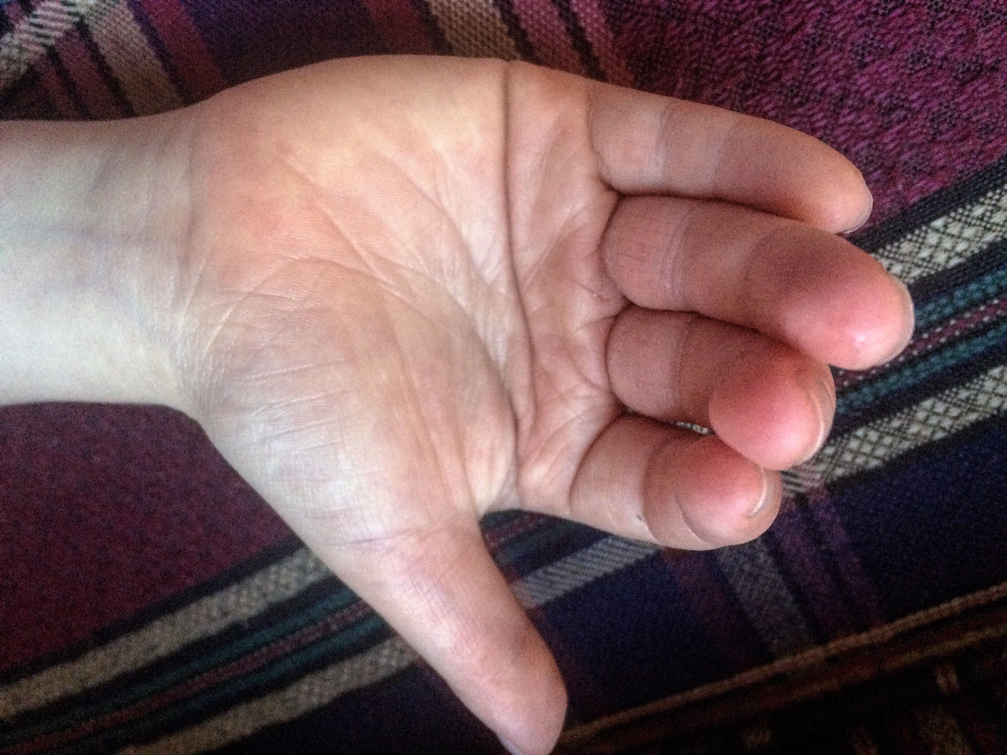 Simian line palmistry tony blair tony bliar - Autism This Is The Right Hand Of A Severely Autistic Young Girl