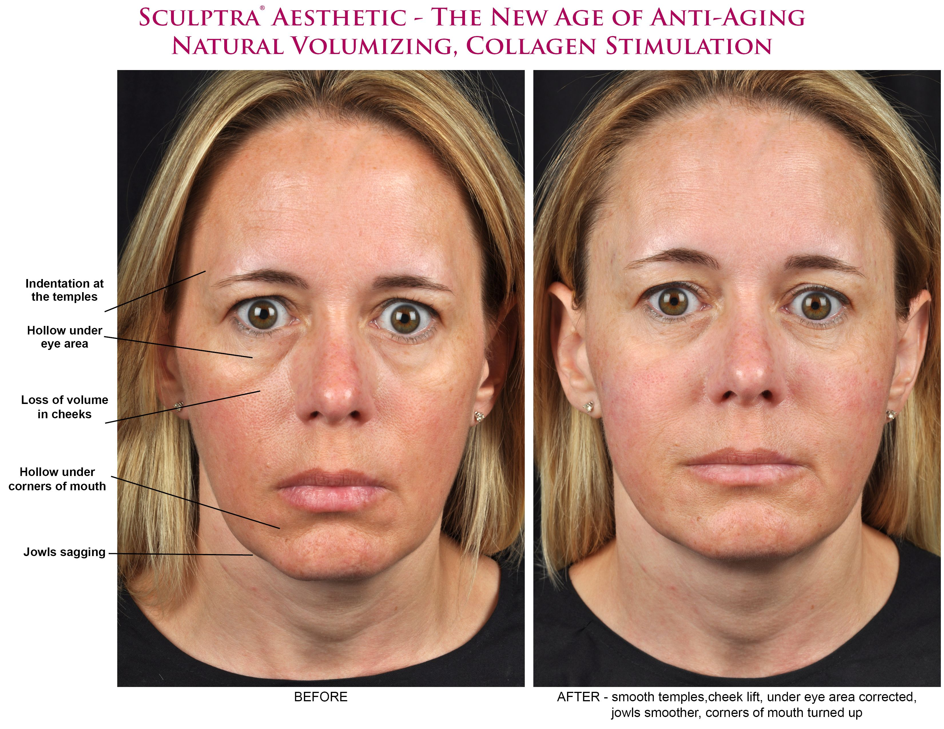 Facial stimulator before after