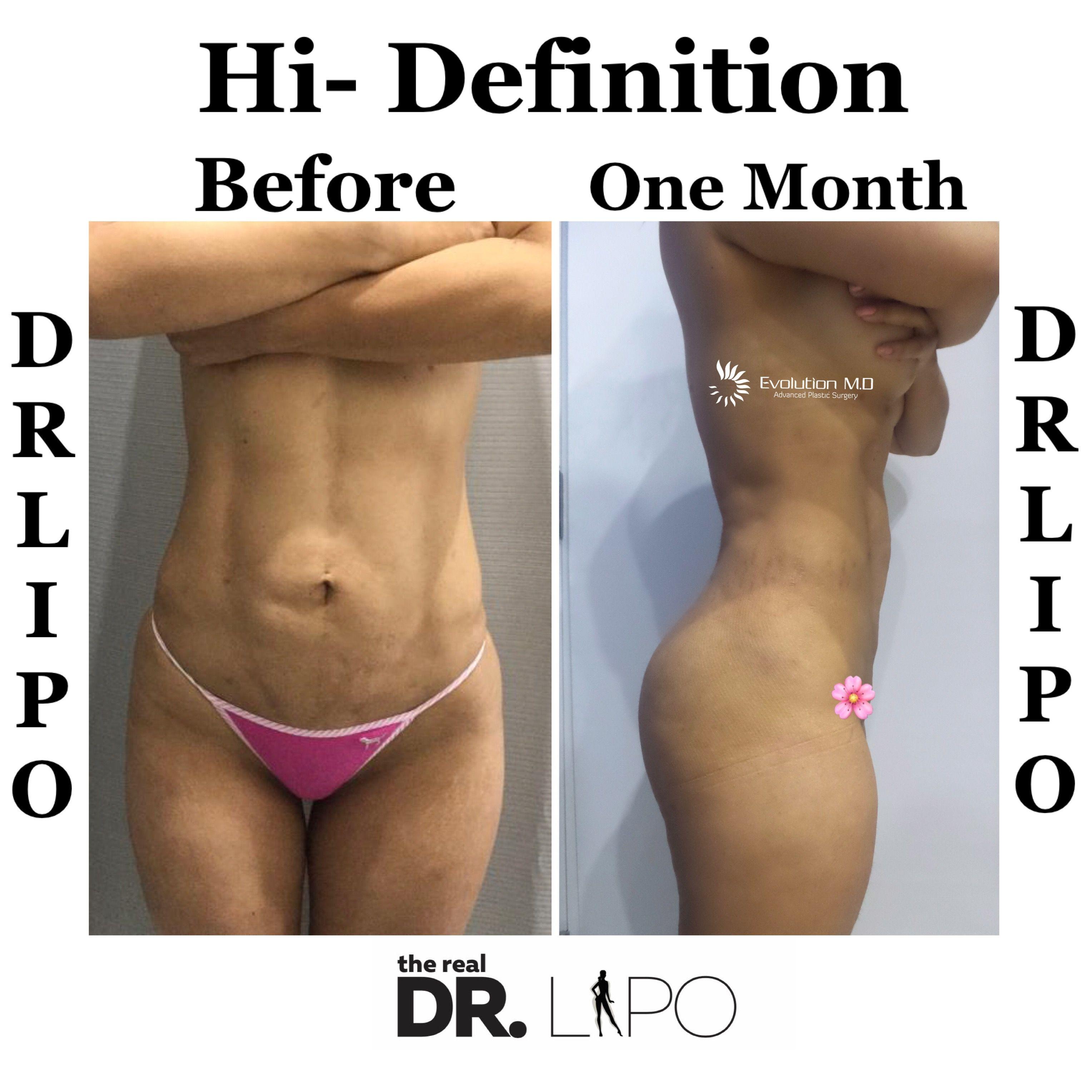 Pin on Liposuction