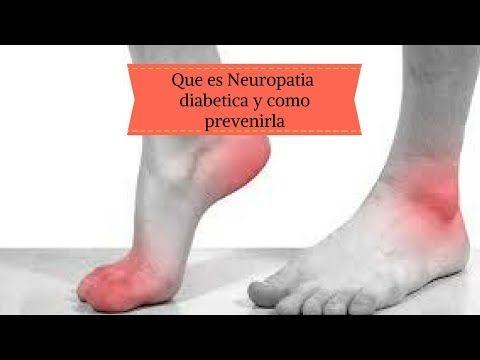 La perdida de peso rapido y neuropatia