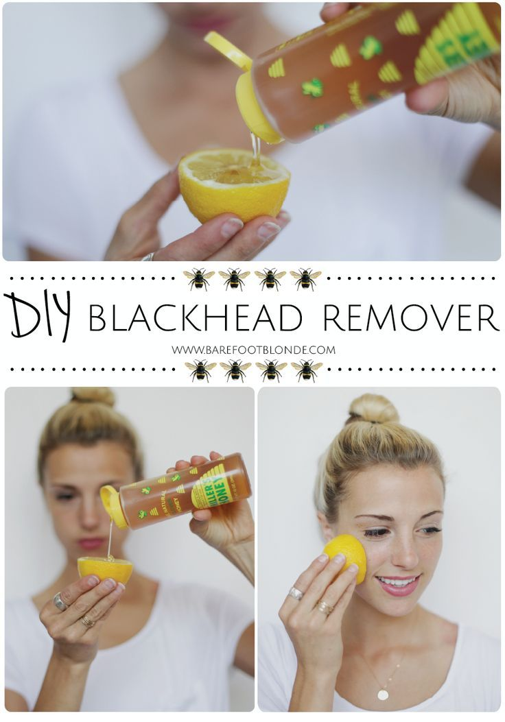 Get rid of blackheads using honey, lemon, and sugar and rubbing on problem areas. Love that she's using my family's honey :):