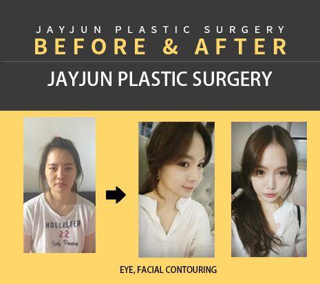 korea eye plastic surgery \/ korea double eyelid surgery \/ korea - plastic surgery consultant sample resume