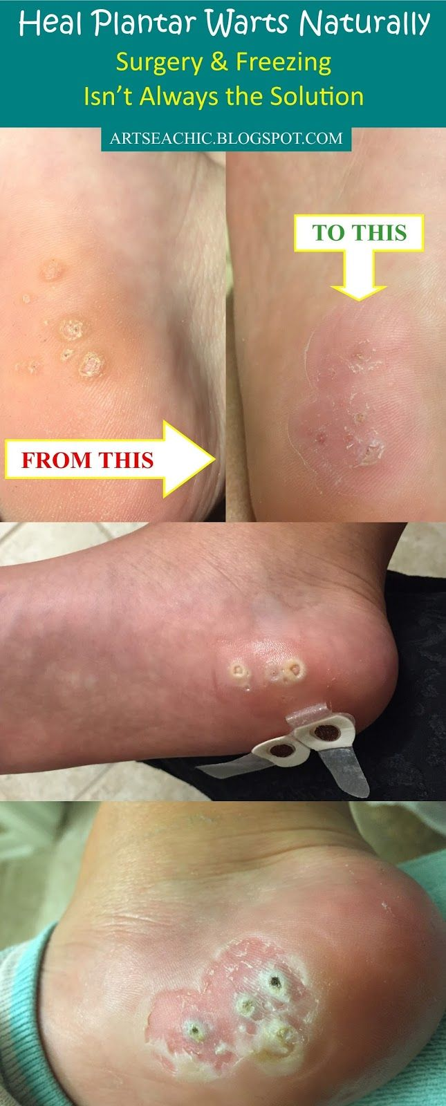 Home remedies for large plantar warts.