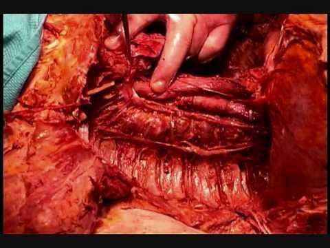 Human Anatomy Dissection 05 Part 2 Of 2 Posterior Thorax