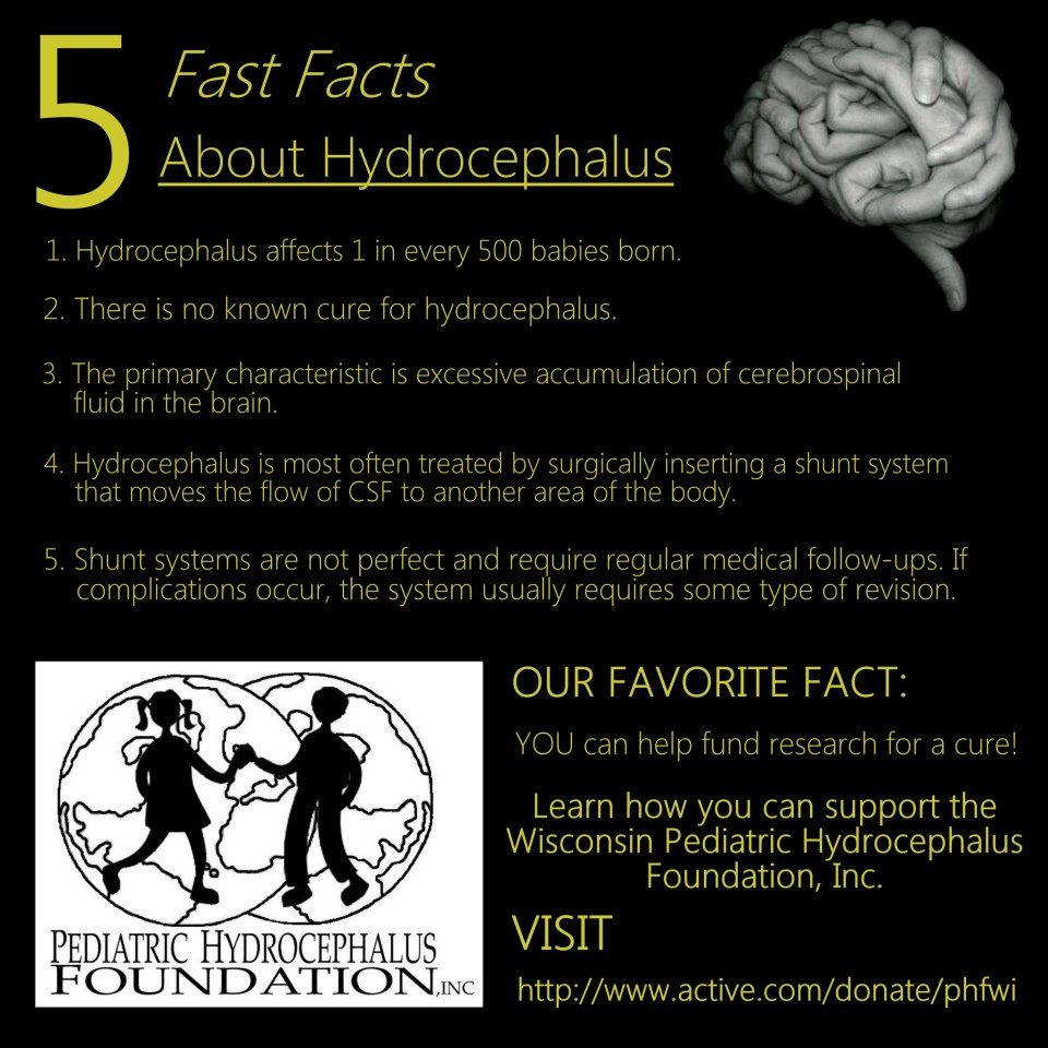 5 Facts About Hydrocephalus | We Need a Cure | Pinterest | Scoliosis