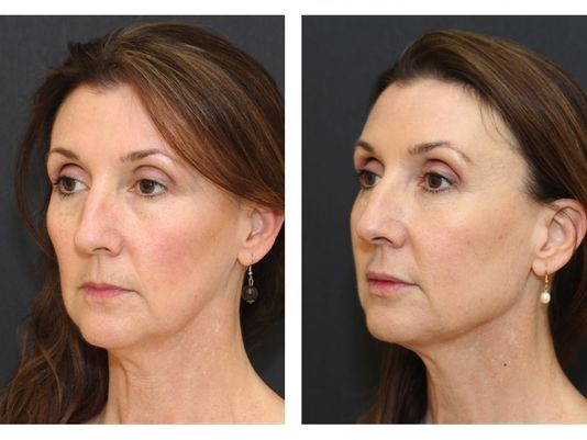 Local doctor invents non-surgical facelift