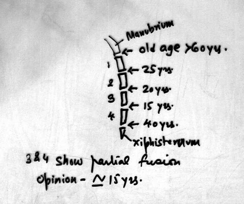Fusion of parts of sternum ( Note: Manubrium with Body at 60 years ...